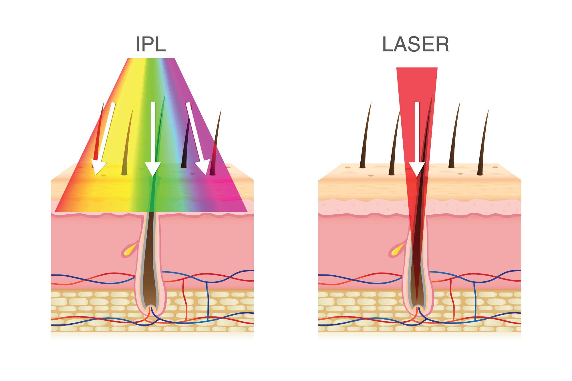 dauerhafte-harrentfernung-laser